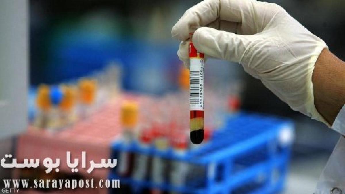 توقعات انتهاء فيروس كورونا تبدأ باختبار الأجسام المضادة الآن