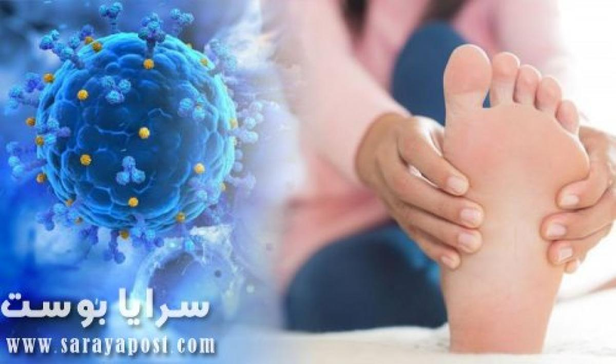 علامة جديدة تؤكد الإصابة بـ فيروس كورونا تظهر فى القدم .. هل لاحظتها ؟!