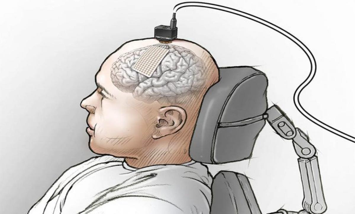 """غرسة في الدماغ تساعد رجلاً مشلولاً على """"التحدث"""" من خلال كمبيوتر"""