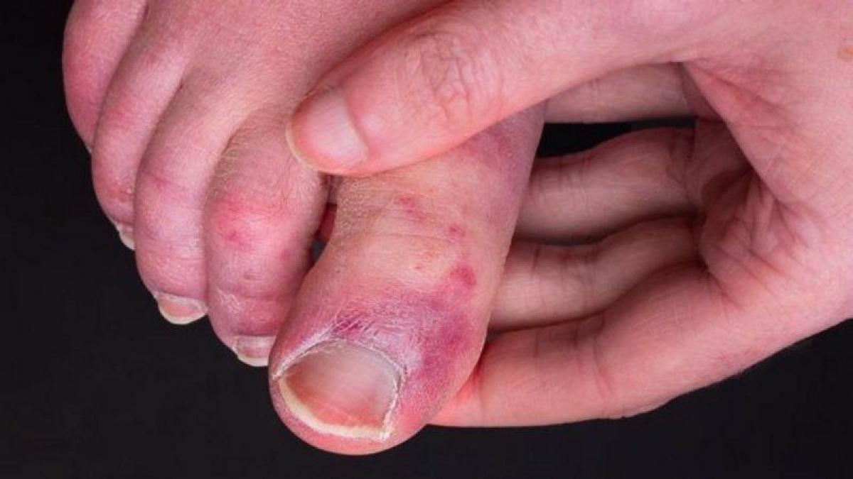 """أسرار """"أصابع كورونا"""" في أقدام المصابين بالفيروس.. تعرّف عليها"""